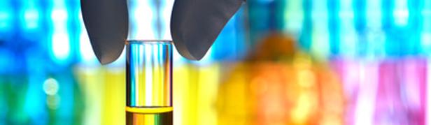 laboratoire d'analyses bactériologiques Bordeaux analyse alimentaire validation DLC réalisation de vos autocontrôles